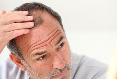 490x330_causes_of_hair_loss_2